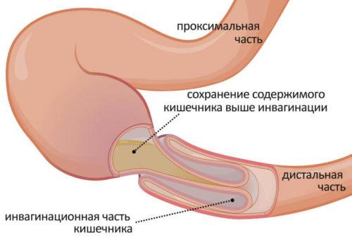 Распространённая врожденная непроходимость кишечника у детей