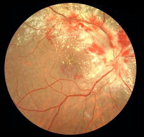 нарушения зрения, вызванные ЦМВ инфекцией