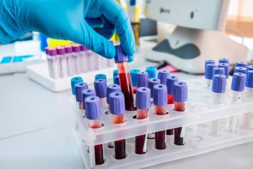 Анализы на выявление возбудителя инфекции