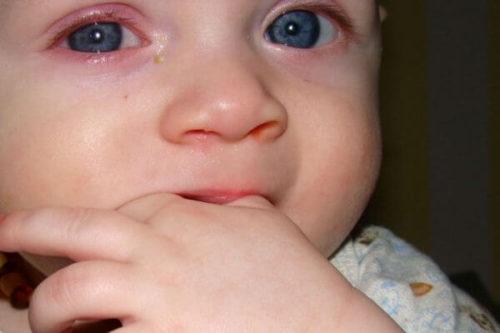 В какой форме может быть инфекция у ребенка