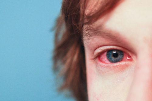 Реакция слизистой глаза на аллергены