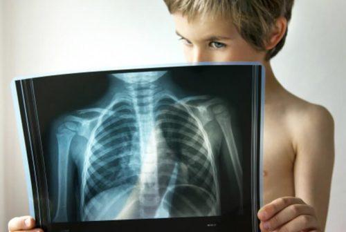 Как диагностируют пневмонию