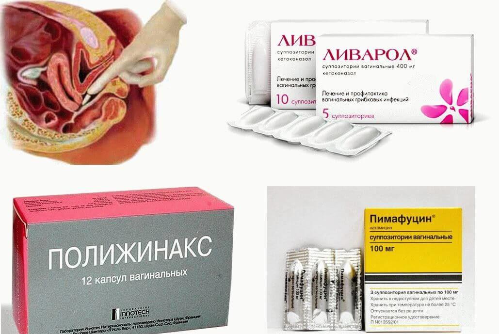 Кремы и мази от молочницы обзор лучших препаратов