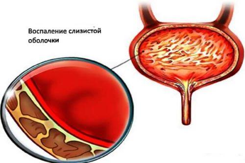 Кишечная палочка в моче – причины и лечение инфекции в мочевом пузыре