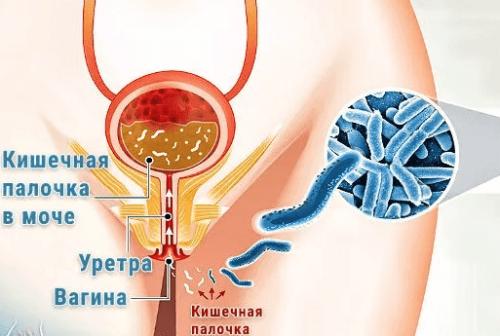 В моче кишечная палочка лечение Рекомендации специалистов