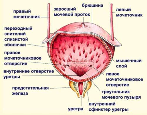 Особенности форм цистита