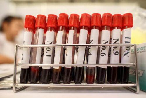 Какой анализ выявляет сифилис. Где и как сдать анализы на сифилис анонимно