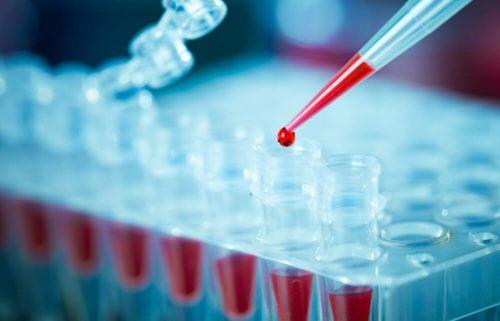 ПЦР-диагностика на обнаружении ДНК-цепей бруцелл