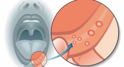 Симптомы первичного бытового сифилиса
