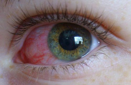 Воспаление глаза при вирусах