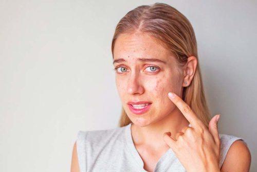 Пиодермия: что это такое? Лечение, симптомы и причины заболевания