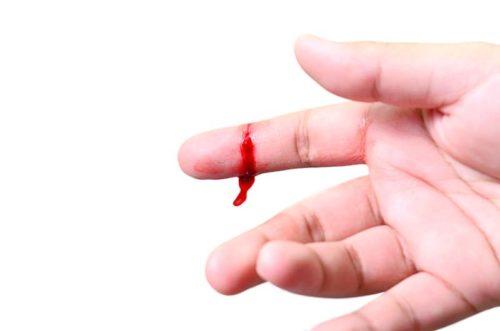 Рана на пальце