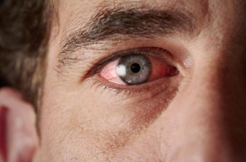 раздражение в глазу