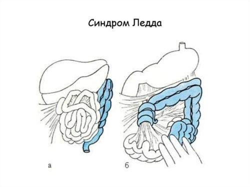 Врожденные патологии кишечника