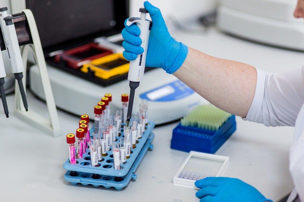 диагностика СПИД в лаборатории