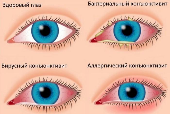 Как отличить вирусный конъюнктивит от бактериального — proinfekcii.ru