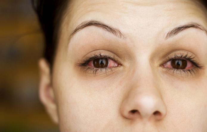 инфекция глаза симптомы и лечение