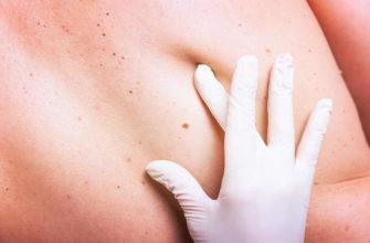 Опасный вид онкологических заболеваний
