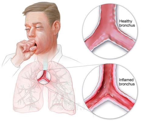 Как заработать воспаление легких