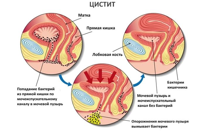 Лечение цистита народными средствами у женщин — proinfekcii.ru