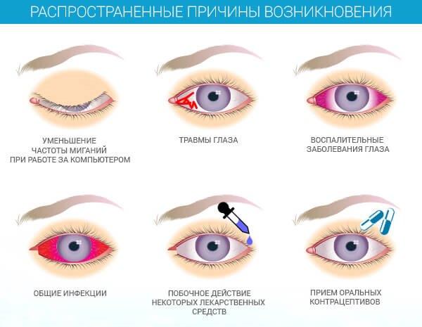 Вирусный конъюнктивит лечение и симптомы — proinfekcii.ru