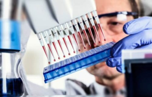 Анализ крови при таксоплазмозе