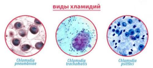 штаммы хламидий