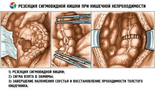 резекция сигмовидной кишки