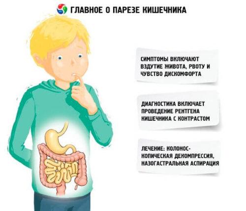 парез кишечника