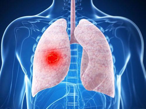 Гельминты в органах дыхания
