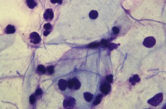 лептотрикс, бактерии