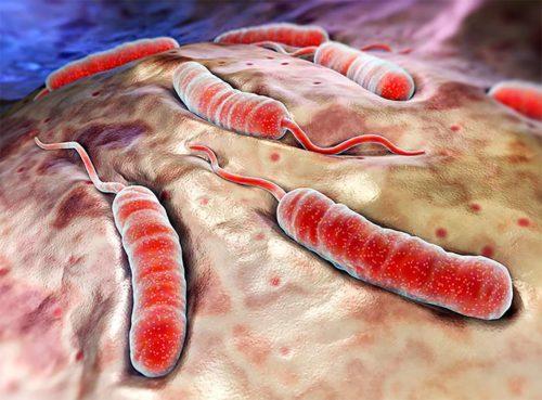холера в организме