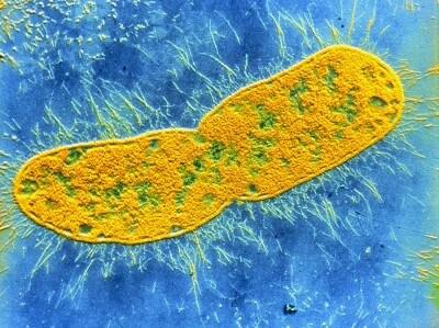 бактерия клебсиеллы особенности