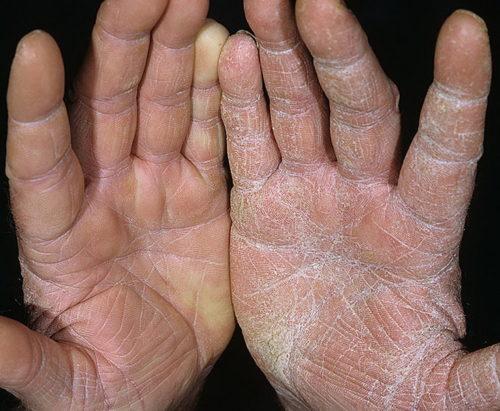 микозы кожи