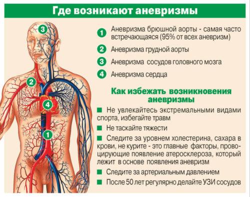 где возникают аневризмы