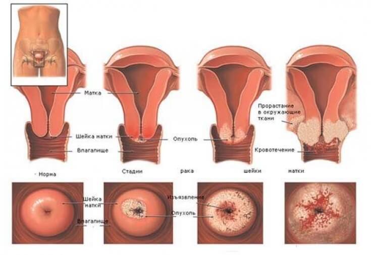 Умеренная дисплазия шейки матки — Симптомы и методы лечения ...