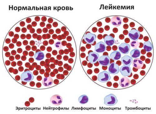 сравнение нормальной крови и лейкемии