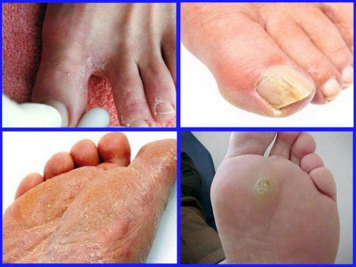 симптомы микоза кожи