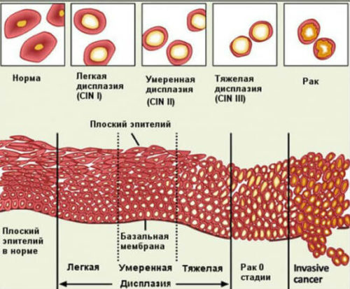 стадии дисплазии шейки матки