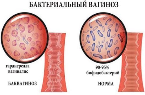 Вируса папилломы - Симптомы и лечение вируса папилломы у женщин - proinfekcii.ru